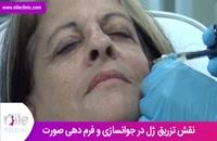 تزریق ژل | فیلم تزریق ژل | کلینیک پوست و مو نیل | شماره 8