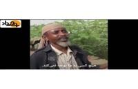 تغذیه مردم یمن از برگ درختان از شدت گرسنگی!