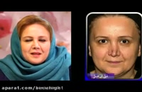 جراحی ترمیمی بینی یا عمل بینی ثانویه توسط دکتر عباسی