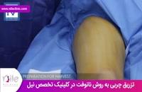 تزریق چربی   فیلم تزریق چربی   کلینیک پوست و مو نیل   شماره 3