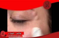تزریق بوتاکس | فیلم تزریق بوتاکس | کلینیک پوست و مو رز | شماره 24