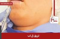 تزریق ژل | فیلم تزریق ژل | کلینیک پوست و مو هلیا | شماره 15