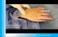 تزریق چربی | فیلم تزریق چربی | کلینیک پوست و مو مارال | شماره 2