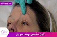 تزریق بوتاکس | فیلم تزریق بوتاکس | کلینیک پوست و مو نیل | شماره 21