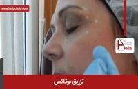 تزریق بوتاکس | فیلم تزریق بوتاکس | کلینیک پوست و مو هلیا | شماره 10