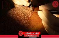 کاشت مو   فیلم کاشت مو   کلینیک پوست و مو رز   شماره 30