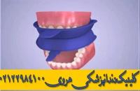 فلوراید تراپی دندان های کودکان در شمال شرق تهران
