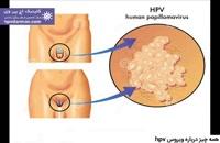 هر آنچه که باید درباره ویروس اچ پی وی hpv بدانید