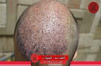 کاشت مو   فیلم کاشت مو   کلینیک پوست و مو رز   شماره 31