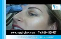 تزریق بوتاکس | فیلم تزریق بوتاکس | کلینیک پوست و مو مارال | شماره 15
