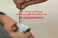 برداشتن گچ بینی در مشهد، 09380000893