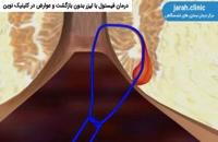 درمان فیستول با لیزر بدون بازگشت و عوارض در کلینیک نوین