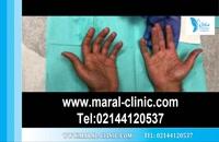تزریق بوتاکس | فیلم تزریق بوتاکس | کلینیک پوست و مو مارال | شماره 14