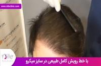 کاشت مو | فیلم کاشت مو | کلینیک پوست و مو نیل | شماره 3