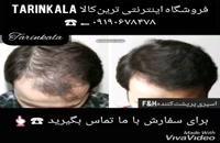 اسپری پرپشت کننده موی سر09190678478- اسپری پرپشت کننده موی سر زدکا|بهرین اسپری حجم دهنده موی سر