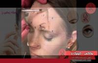 تزریق بوتاکس | فیلم تزریق بوتاکس | کلینیک پوست و مو رز | شماره 27