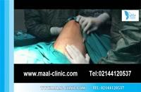 تزریق چربی | فیلم تزریق چربی | کلینیک پوست و مو مارال | شماره 12