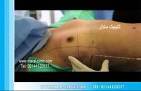 تزریق چربی | فیلم تزریق چربی | کلینیک پوست و مو مارال | شماره 1