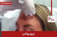 تزریق بوتاکس | فیلم تزریق بوتاکس | کلینیک پوست و مو هلیا | شماره 12