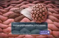 ویروس پاپیلومای انسانی (HPV) و سرطان رحم (https://hpvdarman.com/)