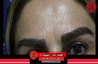 کاشت ابرو | فیلم کاشت ابرو | کلینیک پوست و مو رز | شماره66