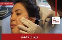 تزریق ژل | فیلم تزریق ژل | کلینیک پوست و مو هلیا | شماره 32