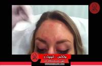 تزریق بوتاکس | فیلم تزریق بوتاکس | کلینیک پوست و مو رز | شماره 25