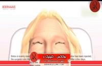 تزریق بوتاکس | فیلم تزریق بوتاکس | کلینیک پوست و مو رز | شماره 36