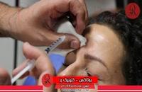 تزریق بوتاکس | فیلم تزریق بوتاکس | کلینیک پوست و مو رز | شماره 28