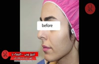 تزریق چربی | فیلم تزریق چربی | کلینیک پوست و مو رز | شماره 70