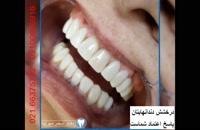 نمونه کار های دکتر سحر میرآبا: اصلاح طرح لبخند، فرم زیبای دندان ها