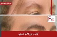 کاشت ابرو | فیلم کاشت ابرو | کلینیک پوست و مو هلیا | شماره 11