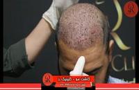 کاشت مو | فیلم کاشت مو | کلینیک پوست و مو رز | شماره 29