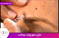 تزریق بوتاکس | فیلم تزریق بوتاکس | کلینیک پوست و مو نیل | شماره 7