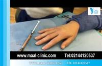 تزریق چربی | فیلم تزریق چربی | کلینیک پوست و مو مارال | شماره 11