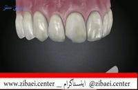 کامپوزیت دندان,پر کردن دندان یا روکش دندان,داندان پزشکی