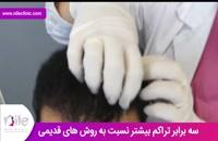 کاشت مو | فیلم کاشت مو | کلینیک پوست و مو نیل | شماره 6