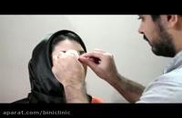 آموزش نحوه چسب زدن بینی پس از جراحی بینی - دکتر عباسی