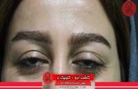 کاشت ابرو | فیلم کاشت ابرو | کلینیک پوست و مو رز | شماره49