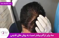 کاشت مو | فیلم کاشت مو | کلینیک پوست و مو نیل | شماره 12