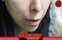 تزریق چربی | فیلم تزریق چربی | کلینیک پوست و مو رز | شماره33