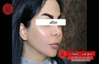 تزریق چربی | فیلم تزریق چربی | کلینیک پوست و مو رز | شماره 72