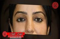 تزریق ژل | فیلم تزریق ژل | کلینیک پوست و مو رز | شماره 47