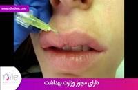 تزریق ژل | فیلم تزریق ژل | کلینیک پوست و مو نیل | شماره 18