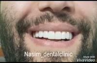 درمانگاه دندانپزشکی نسیم قیطریه - دندانپزشکی زیبایی – ارتودنسی – ایمپلنت – ونیرکامپوزیت – کاشت دندان – اصلاح طرح لبخند – لمینت دندان –