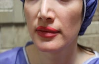 تزریق چربی | فیلم تزریق چربی | کلینیک پوست و مو رز | شماره29