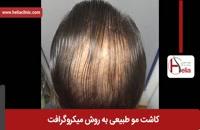 کاشت مو | فیلم کاشت مو | کلینیک پوست و مو هلیا | شماره 33