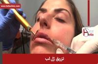 تزریق ژل | فیلم تزریق ژل | کلینیک پوست و مو هلیا | شماره 7