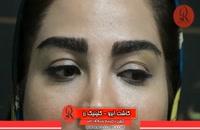 کاشت ابرو | فیلم کاشت ابرو | کلینیک پوست و مو رز | شماره 94