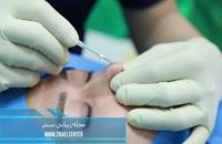 جراحی لیفت بینی با نخ - عمل بالا کشیدن نوک بینی - زیبایی سنتر